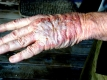 Chemotherapy side effects--burns