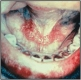 Oral cancer--mouth