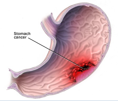 Stomach Cancer Diagram Encognitive